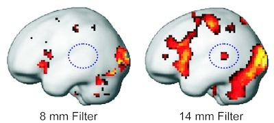 """How clear is our view of brain activity? : BCF researchers publish article in """"Human Brain Mapping"""", demonstrating the large influence of filtering algorithms on results in brain imaging"""