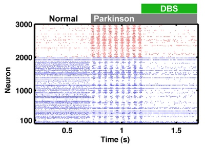 Crippling rhythms of the brain: Network model reveals new insights into causes and possible treatments of Parkinson's disease
