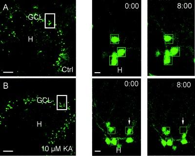 Migration of Dentate Granule Cells in Epilepsy