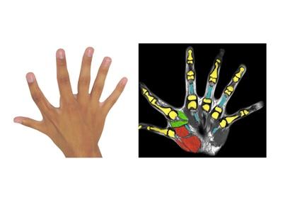 Six fingers per hand: A congenital additional finger brings motor advantages