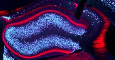 Tiefe Hirnstimulation verhindert im Mausmodell epileptische Anfälle